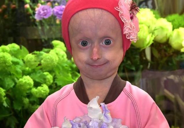 10-летняя девочка из Винницы умерла от старости (фото)